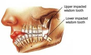 wisdom-teeth-removal-300x182